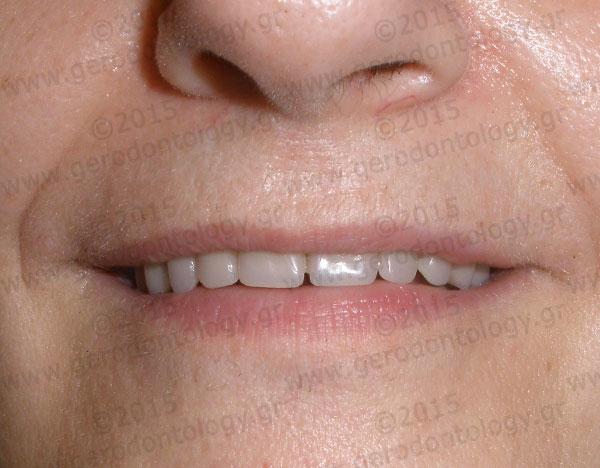 Gerodontology gr :: Complete dentures